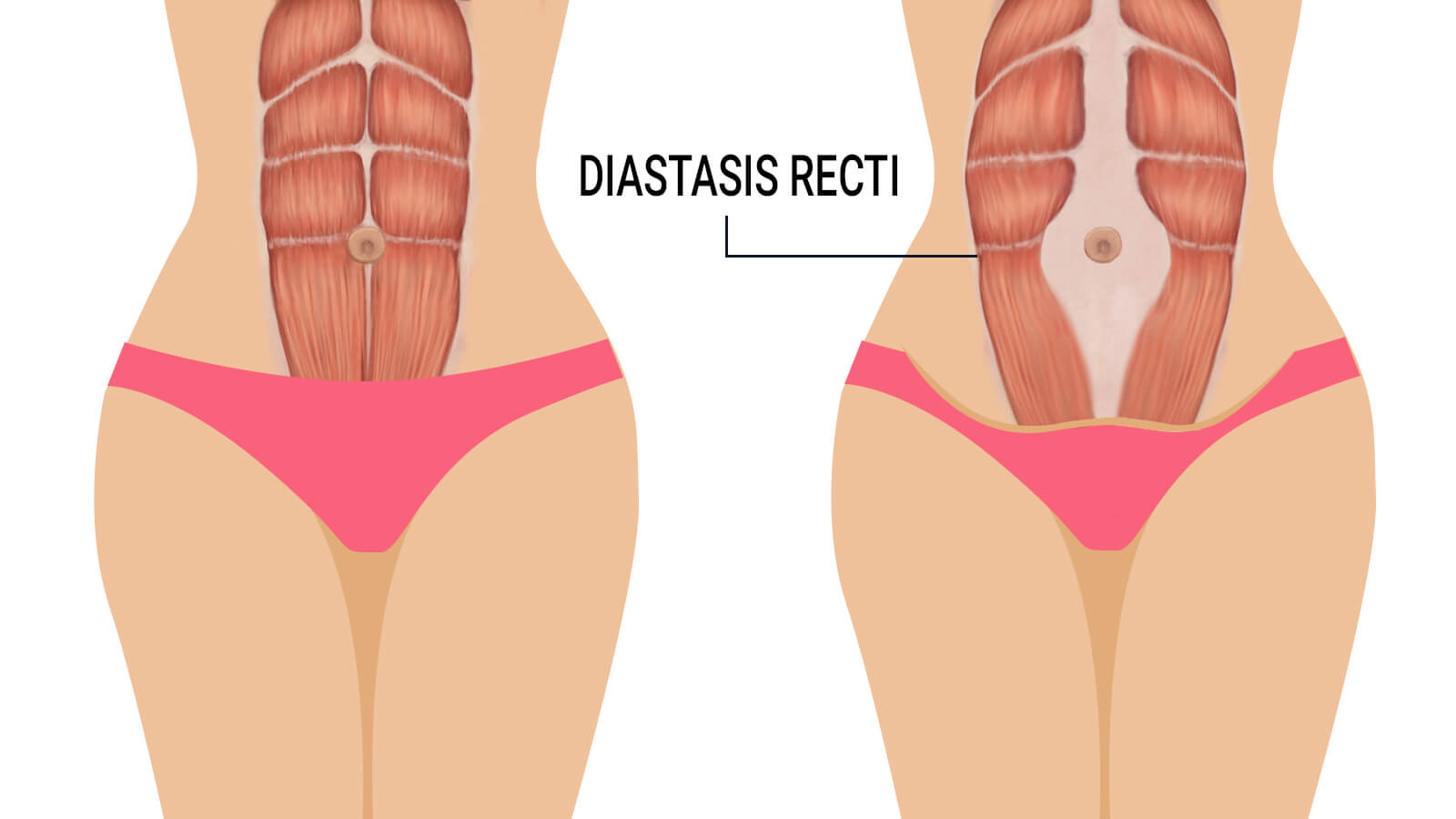 e4280666cd What is Diastasis Recti and How to Fix It. - Agape Physical Therapy